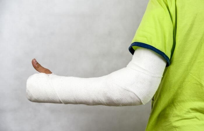 how to waterproof an arm cast